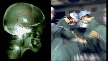 aneurysm i hjärnan