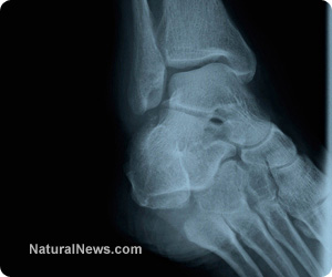 X-Ray-Bones-Broken-Foot-Leg-Scan