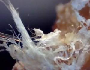 cancer malignt melanom