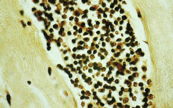 cancer sporsäckssvamp