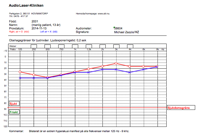 Worst case of Hyperacusis, Audiogram, Discomfort levels 2014-11-13