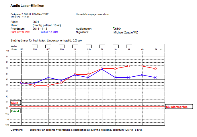 Worst case of Hyperacusis, Audiogram, Pain threshold levels 2014-11-13