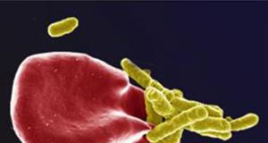 Foton på mikrober i blodet: Marnie Potgieter, Janette Bester, Douglas B. Kell and Etheresia Pretorius