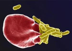 Blodkropp angrips av bakterier