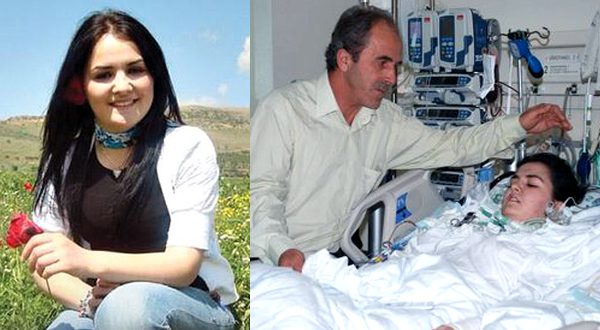 Yesim-before-after