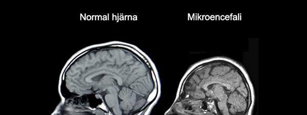 Mikrocefali