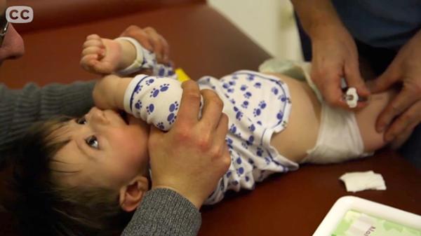 Vaccin, bebis - CC