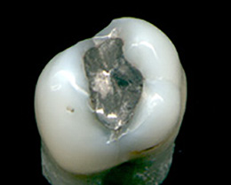 Amalgam - Wikimedia Commons