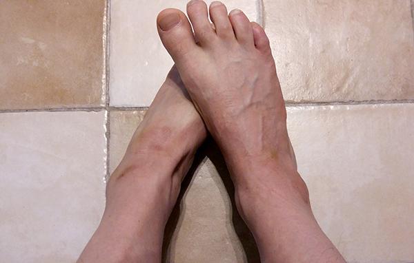 Psoriasis på fötterna, 28 april 2016