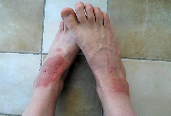 Psoriasis på fötterna - 9 april 2015
