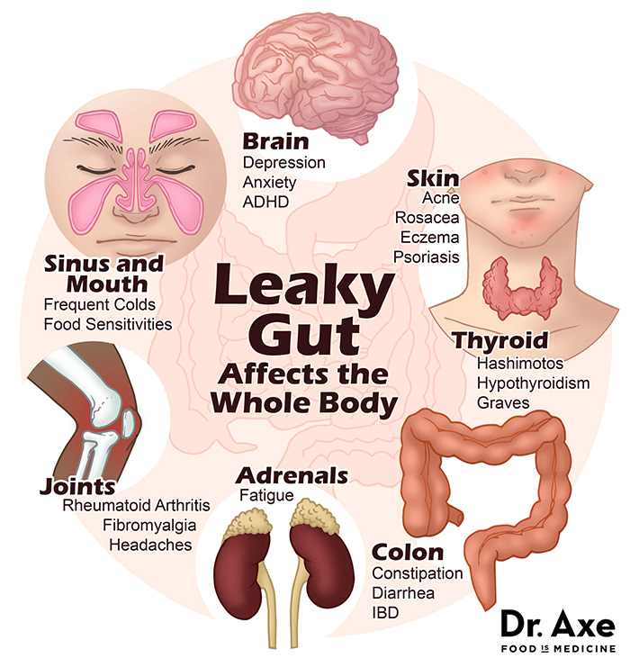 Leaky Gut Syndrome - Image: Draxe.com