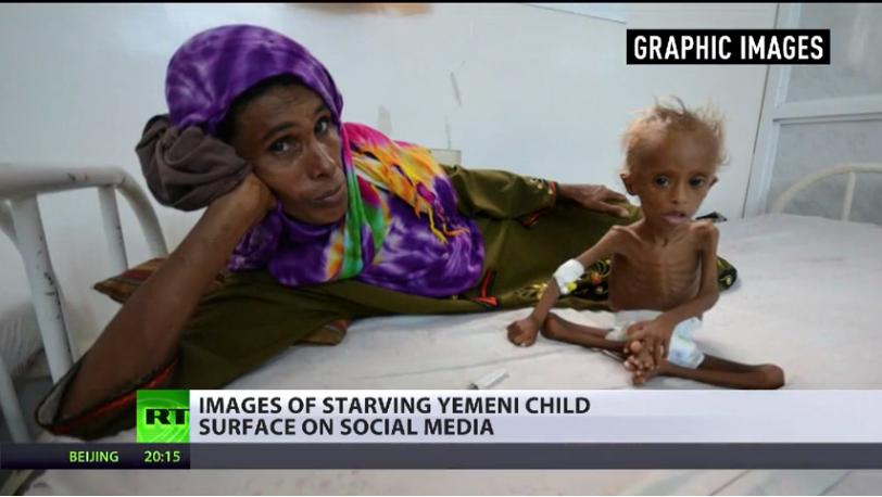 Svält under kriget i Jemen - Foto: RT.com