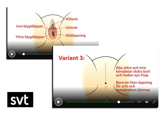Könsstympning - Grafik: SVT.se