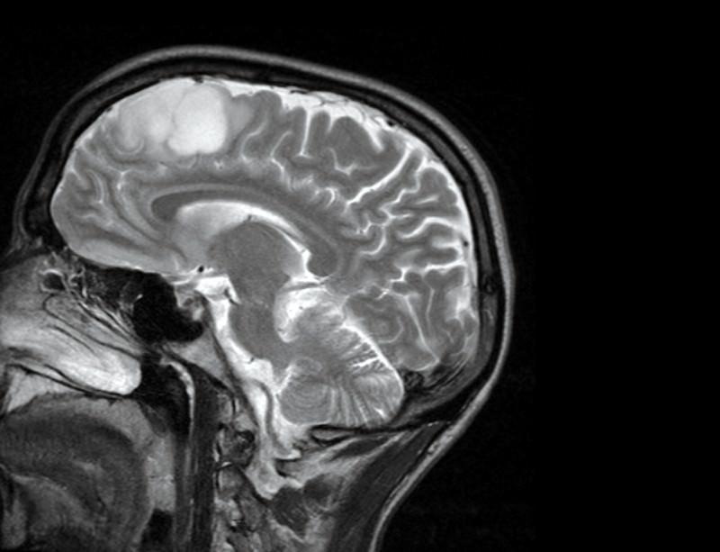 Hjärntumör - Foto: Stuart-Farrimond
