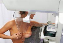 Mammografi - Källa: Wikied.ru