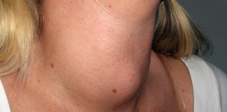 Struma beror på jodbrist. Foto: Drahreg01. Licens: CC BY-SA 3.0, Wikimedia Commons