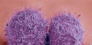 Bild: Candida auris. Bildkälla: Healthunits.com