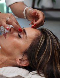 Akupunktur. Foto: Antonika Chanel. Licens: Unsplash.com (free use)