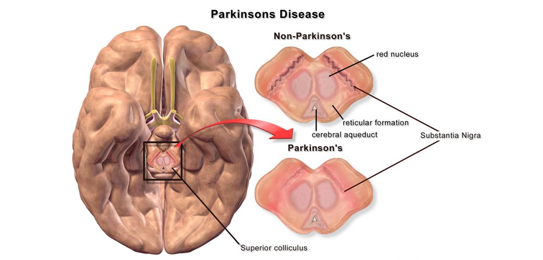 Substantia nigra pars compacta har betydelse för Parkinsons sjukdom. Illustration: Bruce Blaus. Licens: CC BY 3.0, Wikimedia Commons