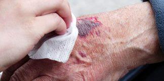 Temabild av sår. Foto: Hans Braxmeier. Licens: Pixabay.com (free use) https://pixabay.com/sv/users/hans-2/