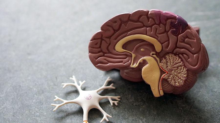 Modell av hjärnan. Foto: Obina Weermeijer. Licens: Unsplash.com