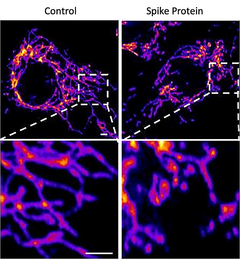 Representative images of vascular endothelial control cells (left) and cells treated with the SARS-CoV-2 Spike protein (right) show that the spike protein causes increased mitochondrial fragmentation in vascular cells. Credit: Salk Institute